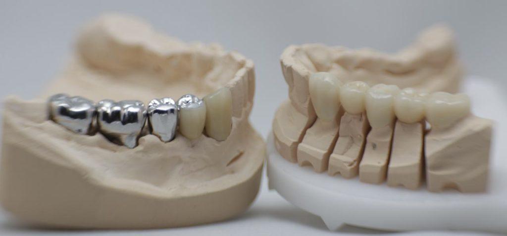 NEM-Zahersatz im Vergleich zu einem Zahnersatz aus Zirkon